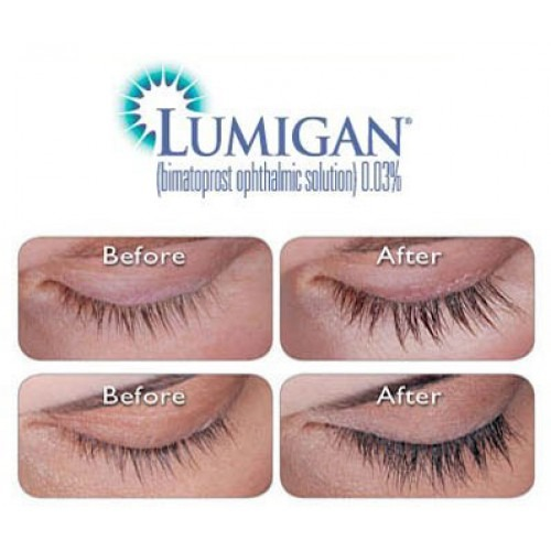 How to store lumigan eye drops for glaucoma
